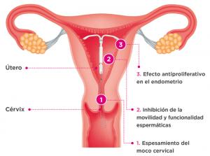 Diagrama del funcionamiento del DIU hormonal